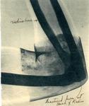 Picture of Broken Radius Bone, 1944